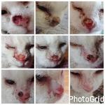 Esta es la historia de mi carcinoma de células escamosas en mi nariz y el tratamiento de electroquimioterapia.